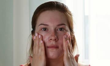 Σύνδρομο Sjögren - Αίτια, συμπτώματα, θεραπεία, αντιμετώπιση, κίνδυνοι