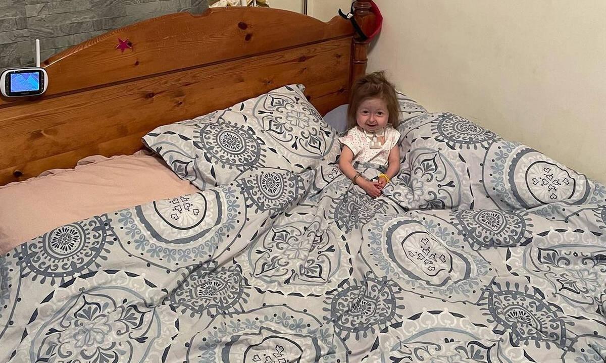 Το μοναδικό κορίτσι στον κόσμο με την ασθένεια «Benjamin Button» (βίντεο)