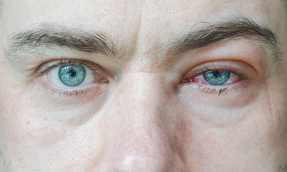 Πρήξιμο ματιών: Πού μπορεί να οφείλεται (εικόνες)