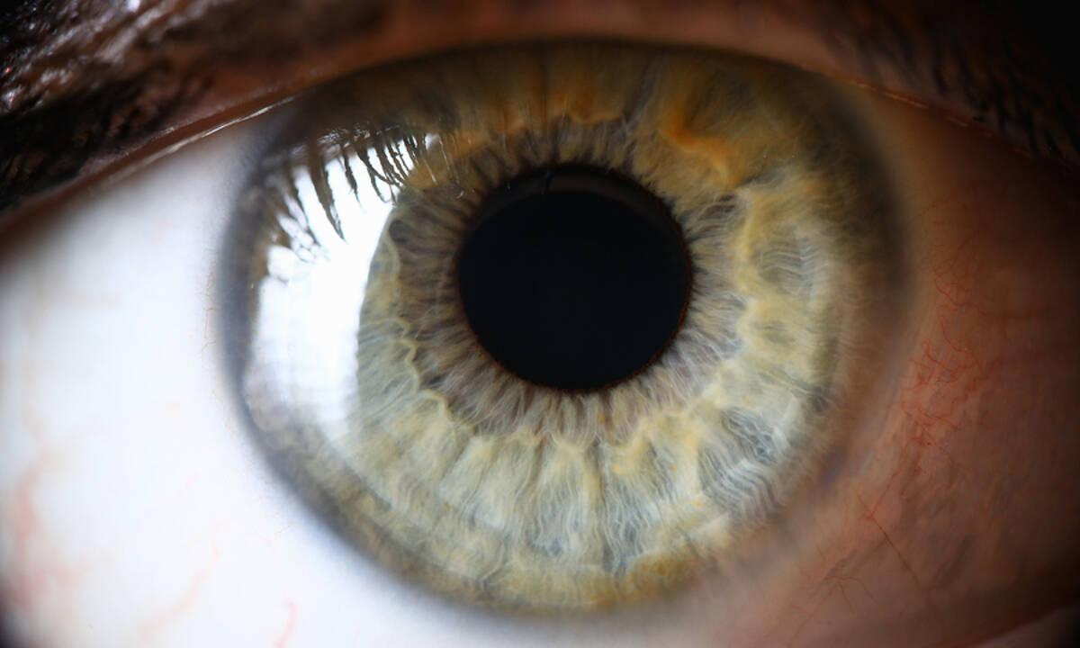 Οι σοβαρές παθήσεις που φαίνονται στα μάτια σας (εικόνες)